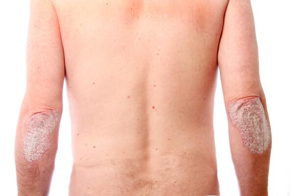 Organikus szappan pikkelysömör, ekcéma és problémás bőr kezelésére saját tinktúrával | papirmeritomuhely.hu